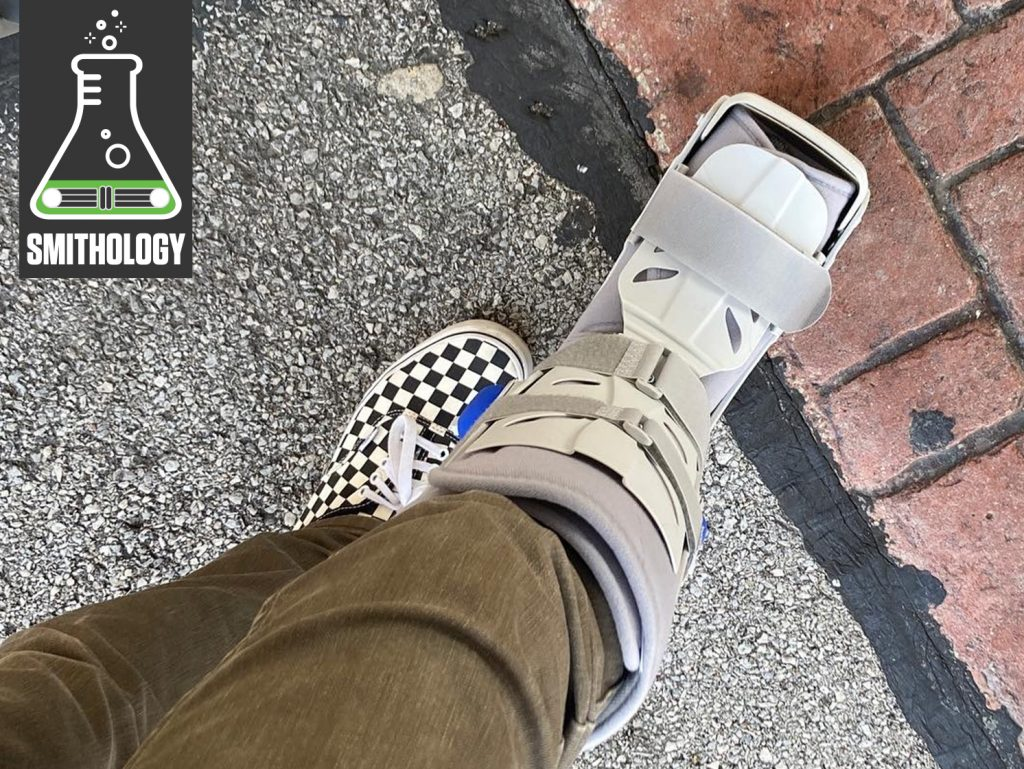 Smithology Broken Foot in boot lede