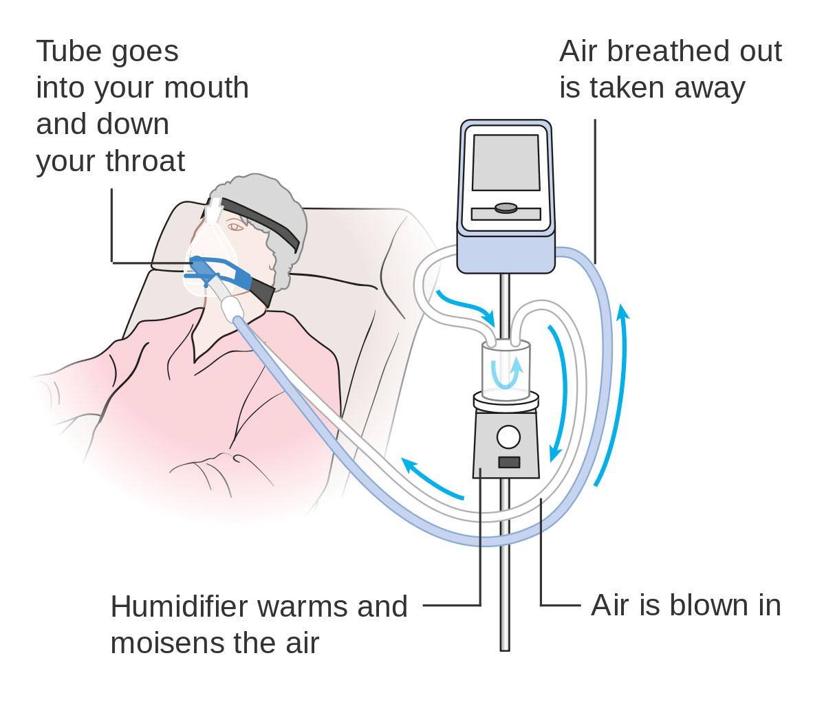 how a ventilator works